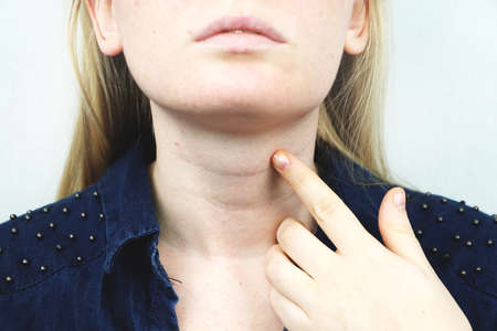 Thyroid gland. Closeup portrait of cute sick young blonde woman in white top having sore throat, holding hand on her neck