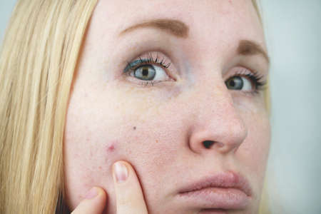 Young woman with acne. Applying ointment to the pimple. Beauty, skin care lifestyle concept. Standard-Bild