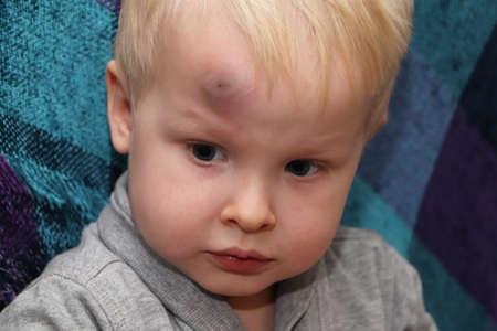 Un gran hematoma en la frente de un niño