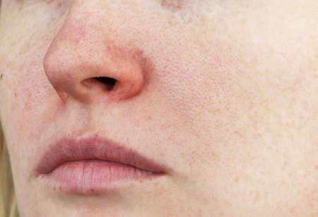 Cuperosis en la nariz de una mujer joven. Acné en la cara. Examen por un médico Foto de archivo