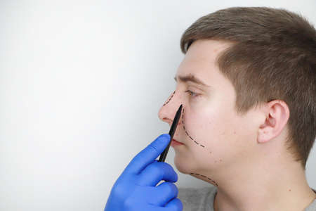 A man at the reception at the plastic surgeon. Before nose surgery, rhinoplasty