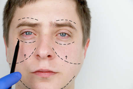 A man at the reception at the plastic surgeon. Before plastic surgery: eyebrow, forehead, chin and cheek lift Banco de Imagens - 124643282