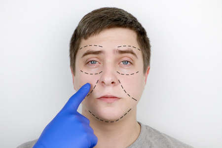 A man at the reception at the plastic surgeon. Before plastic surgery: eyebrow, forehead, chin and cheek lift