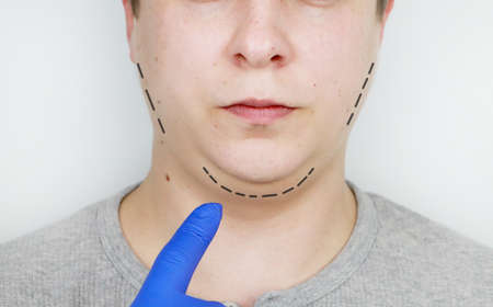 Chin lift - mentoplasty. A man at the reception at the plastic surgeon. Preparation for surgery