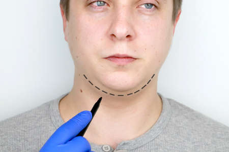 Chin lift - mentoplasty. A man at the reception at the plastic surgeon. Preparation for surgery 写真素材 - 124643290