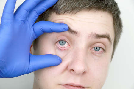 A man is examined by an ophthalmologist. A terrible sight of the eye with redness and tearing