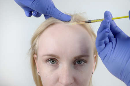 Hair mesotherapy or hair transplant: a beautician doctor makes injections in the head of a woman for hair growth or to prevent baldness Stockfoto
