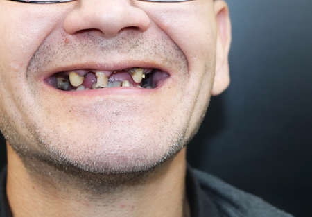 The man has rotten teeth, teeth fell out, yellow and black teeth hurt. Poor teeth condition, erosion, caries. The doctor prepares the patient for treatment