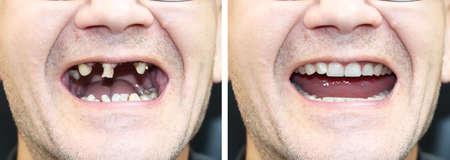 De patiënt bij de orthodontist voor en na het plaatsen van tandheelkundige implantaten. Tandverlies, rotte tanden, kunstgebit, veneers Stockfoto