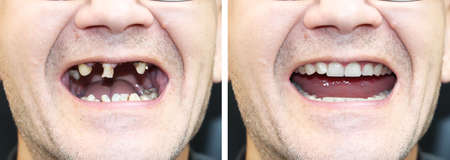 The patient at the orthodontist before and after the installation of dental implants. Tooth loss, decayed teeth, denture, veneers 免版税图像