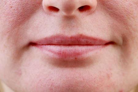 Primer plano de los labios de la niña. Fotografía macro de problemas de piel, acné, poros dilatados en las mejillas y el mentón