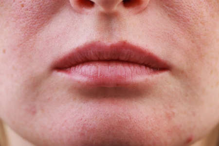 Girls lips close-up. Macro photo of problem skin, acne, enlarged pores on the cheeks and chin Zdjęcie Seryjne