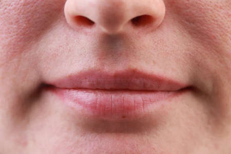 Girl's lips close-up. Macro photo of problem skin, acne, enlarged pores on the cheeks and chin
