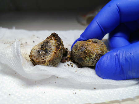 Gallstones close up. Calculi in the hands of the surgeon after laparoscopy, surgery to remove the gallbladder. Complications of gallstone disease. Cut bile crystals. Mobile photo