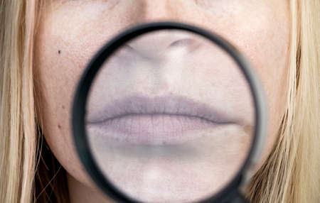 Chapped and dry lips under a magnifying glass. Woman at the doctor's appointment
