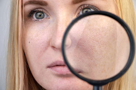 Enlarged pores, black spots, acne, rosacea close-up on the cheek. A woman is being examined by a doctor. Dermatologist examines the skin through a magnifier, a magnifying glass
