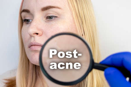 Post-acne under a magnifying glass. Skin with acne scars. Woman at the appointment with a dermatologist