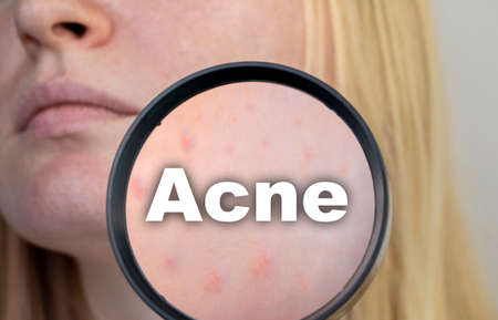 Acne close-up. A woman is being examined by a doctor. Dermatologist examines the skin through a magnifier, a magnifying glass