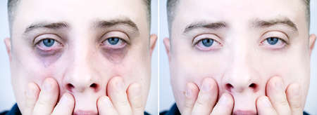 Bags under the eyes, hernias on the face of a man. Plastic surgeon examines a patient. Before and after blepharoplasty