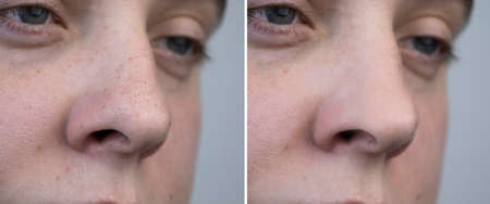 Black dots, clogged pores on the nose of a man close-up. A patient at a beautician appointment. Before and after facial cleansing
