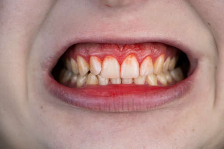Gum bleeding and inflammation close up. A man examined by a dentist. The diagnosis of gingivitis