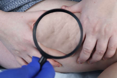 A doctor examines a patient's leg with lipodystrophy. A magnifying glass shows cellulite. The concept of obesity and treatment of liposclerosis (orange peel)