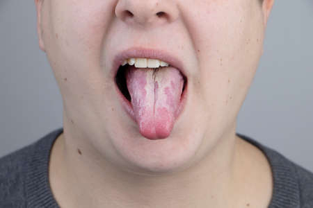 White curd on the tongue. A physician or gastroenterologist examines a man's tongue. Patient has poor oral hygiene or a symptom of illness