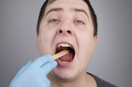 An otolaryngologist examines a man's throat with a wooden spatula. A possible diagnosis is inflammation of the pharynx, tonsils or pharyngitis. The concept of treatment and prevention of throat diseases