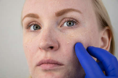 A woman examines dry skin on her face. Peeling, coarsening, discomfort, skin sensitivity. Patient at the appointment of a dermatologist or cosmetologist, selection of cream for dryness