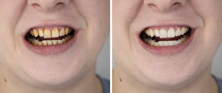 Teeth of a man before and after bleaching. The dentist removed yellow plaque from tooth enamel. The concept of professional toothbrushing in a dental clinic