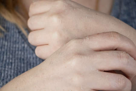 Dry hands and peeling of the skin, mycosis. The girl shows her hands to a doctor dermatologist. Moisturizing the hands and treating the fungus on the fingers