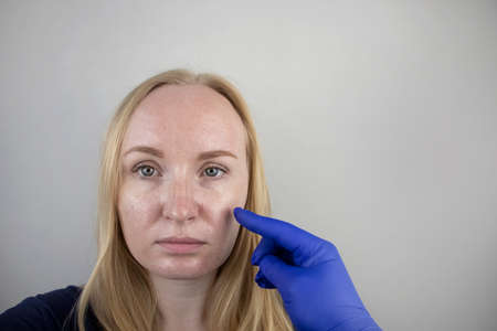 Oily and problem skin. Portrait of a blonde girl with acne, oily skin and pigmentation Banco de Imagens