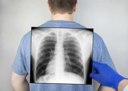 A chest x-ray of a man from the back. A doctor radiologist is studying an x-ray examination. A picture of the organs of the chest cavity is attached to the patient's body