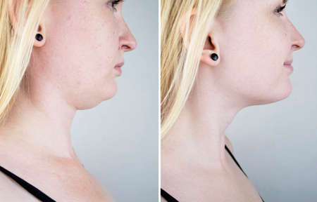 Second chin lift in women. Photos before and after plastic surgery, mentoplasty or facebuilding. Chin fat removal and face contour correction
