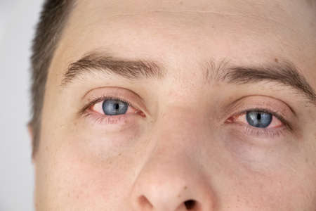 The yellow color of the male eye. Symptom of jaundice, hepatitis or problems with the gall bladder, gastrointestinal tract, liver. Stok Fotoğraf