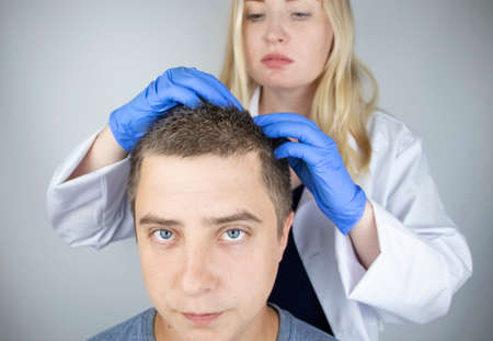 A trichologist examines the hair of a man who begins alopecia. Consultation with a dermatologist. Hair loss, alopecia, pruritus, burning head or seborrhea