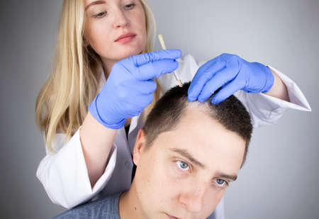 A trichologist doctor drips the serum onto the patient's hair. Treatment of alopecia. Hair loss, alopecia, pruritus, burning head or seborrhea