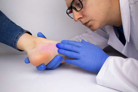 A dermatologist examines a toenail affected by a fungus. Treatment of mycosis and assistance to patients with fungal diseases.