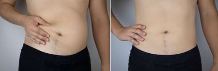 The man shows the results of work on the body. Before and after a thick and thin waist. In the photo on the left, belly fat is visible. In the photo on the right, a thin waist without extra kilograms Standard-Bild