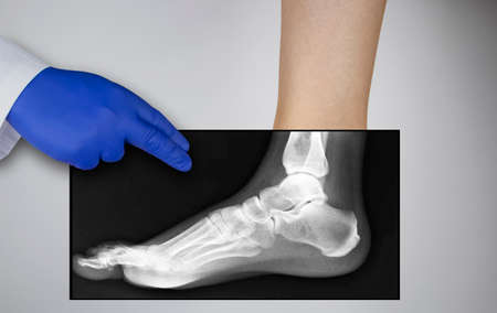X-ray of a woman's foot. A photograph of the leg bones is applied to the patient's feet. The radiologist examines the X-ray. Banque d'images