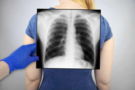 X-ray of the chest of a woman. A doctor radiologist is studying an x-ray examination. A picture of the organs of the chest cavity is attached to the patient's body