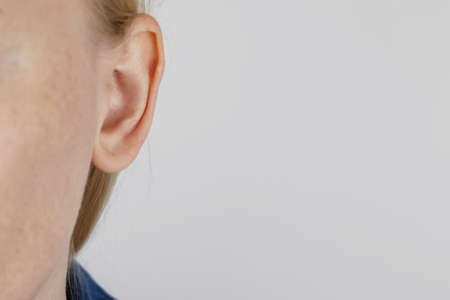 Darwin's tubercle on the ear. The girl at the reception at the plastic surgeon, shows the auricle. Standard-Bild