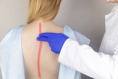 A woman at the doctor's appointment with back pain. Treatment of spinal deformity and stoop. Osteoporosis, kyphosis, lordosis, or scoliosis. Stock Photo