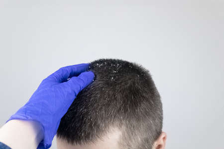 Dandruff before and after. The man on the left shows his shoulder, which has a lot of dandruff. In the photo on the right, the problems with the scalp fungus have disappeared and the man is happy.