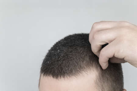 Dandruff before and after. The man on the left shows his shoulder, which has a lot of dandruff. In the photo on the right, the problems with the scalp fungus have disappeared and the man is happy. Imagens