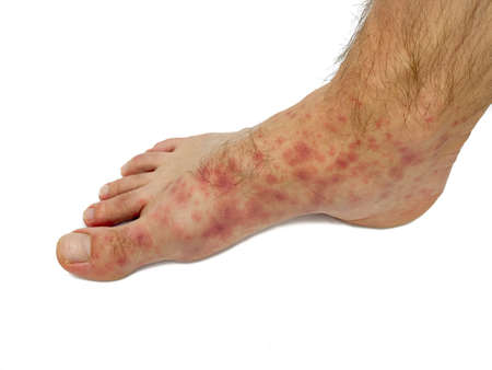 Red rash on the feet of a male. Stock image isolated on a white background.