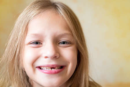 Close-up and soft focus portrait of a cute funny girl with long blonde straight hair on a blurry light background. Child shows her mouth with empty space without baby tooth. Toned photo