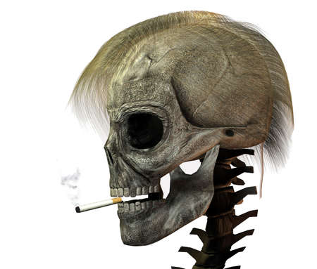 bone cancer: 3D skull with cigarette isolated on white Stock Photo