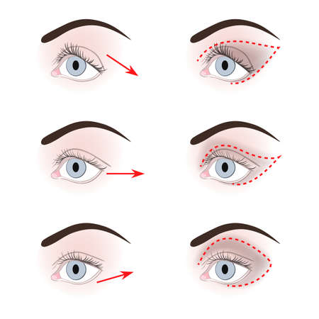 cilia: Three types of eyelids: down turned, up turned, almond