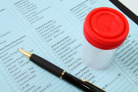 Urine container and pen on lab test form Stock Photo